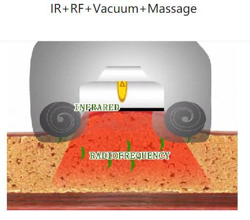 No invasiva RF + Infrarrojo