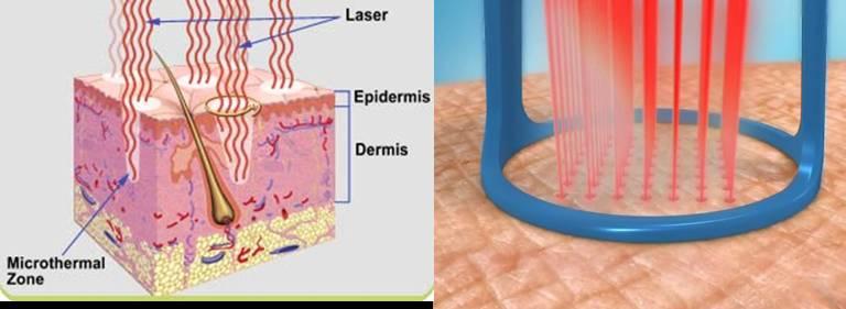 Eliminación de cicatrices de acné