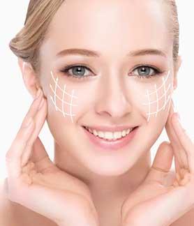 Estiramiento facial
